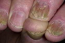 Аргодерм от грибка восстанавливает ногтевую пластину