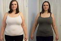 Женщина до и после применения биолипосактора