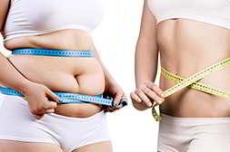 Женщина до и после применения keto slim
