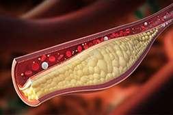 Diagen снижает холестерин.