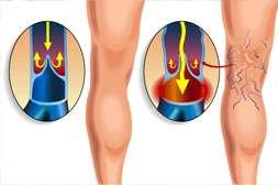 Varikosette нормализует кровообращение.