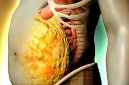 Harmonica Linea уничтожает любые жировые накопления.