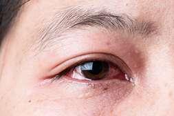VisuTabs обладает противоаллергенным действием.
