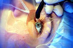 Препарат Visucaps восстанавливает зрение без операции.