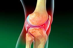Капсулы Артростан лечат инфекционное воспаление.