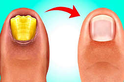 Состав Дерматизона восстанавливает эпидермис и ногти.