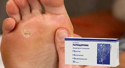 Таблетки Папидермин от бородавок.
